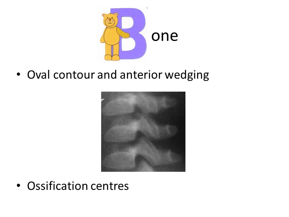 one Oval contour and anterior wedging Ossification centres
