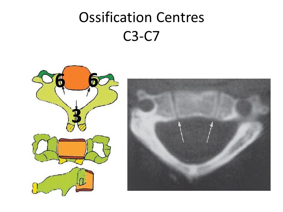Ossification Centres C3-C7 3 6 6