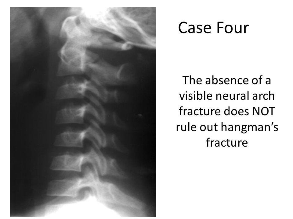 Case Four The absence of a visible neural arch fracture does NOT rule out hangman's fracture