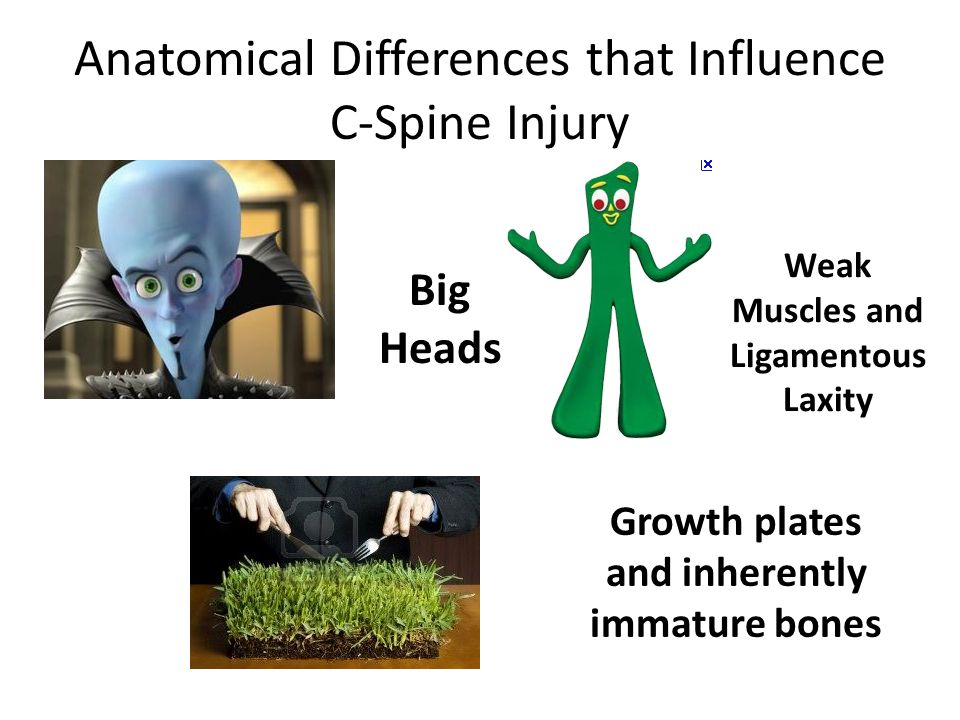 Anatomical Differences that Influence C-Spine Injury Big Heads Weak Muscles and Ligamentous Laxity Growth plates and inherently immature bones