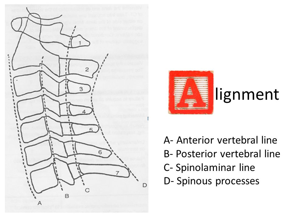 lignment A- Anterior vertebral line B- Posterior vertebral line C- Spinolaminar line D- Spinous processes