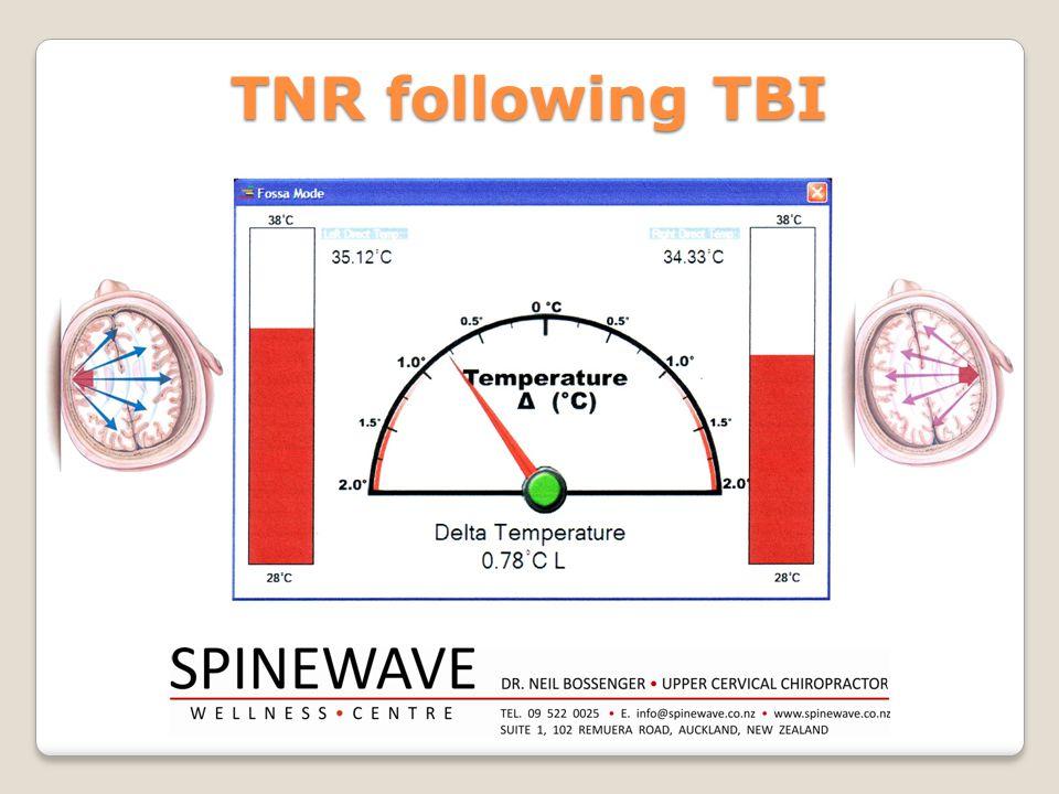 TNR following TBI
