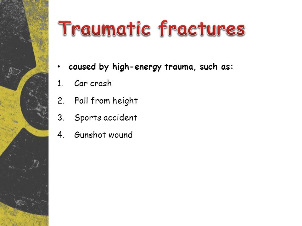 caused by high-energy trauma, such as: 1.Car crash 2.Fall from height 3.Sports accident 4.Gunshot wound