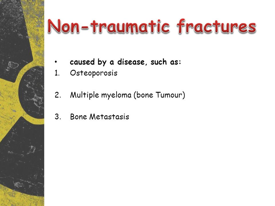 caused by a disease, such as: 1.Osteoporosis 2.Multiple myeloma (bone Tumour) 3.Bone Metastasis