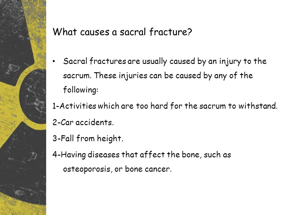 What causes a sacral fracture.Sacral fractures are usually caused by an injury to the sacrum.