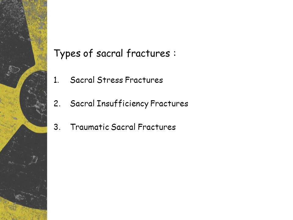Types of sacral fractures : 1.Sacral Stress Fractures 2.Sacral Insufficiency Fractures 3.Traumatic Sacral Fractures