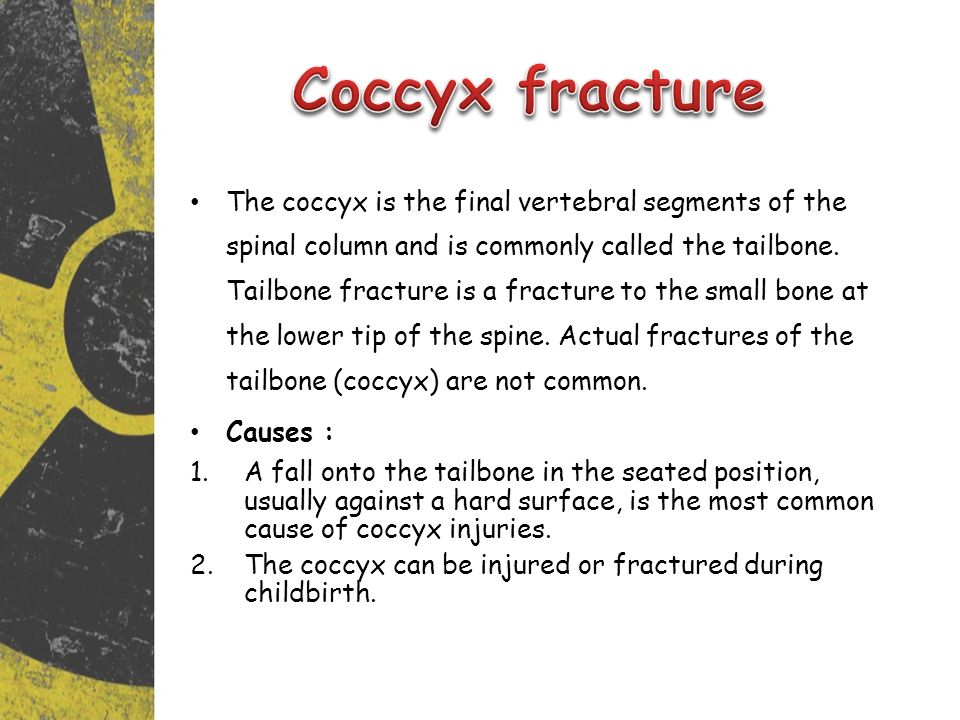 The coccyx is the final vertebral segments of the spinal column and is commonly called the tailbone.