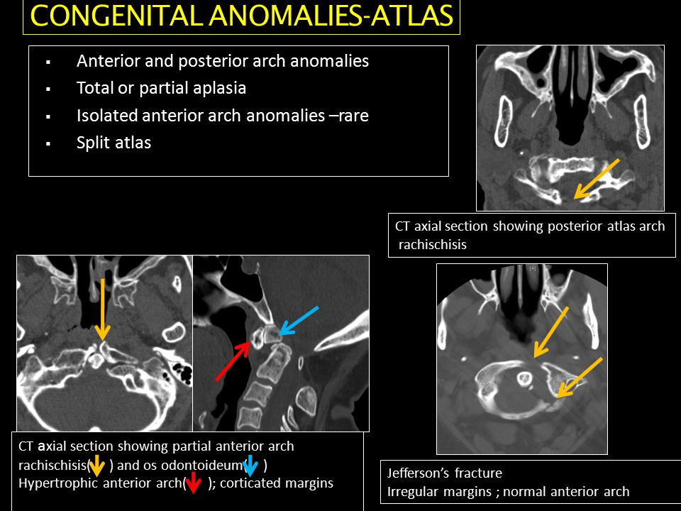  Anterior and posterior arch anomalies  Total or partial aplasia  Isolated anterior arch anomalies –rare  Split atlas CT axial section showing posterior atlas arch rachischisis CT a xial section showing partial anterior arch rachischisis( ) and os odontoideum( ) Hypertrophic anterior arch( ); corticated margins Jefferson's fracture Irregular margins ; normal anterior arch CONGENITAL ANOMALIES-ATLAS