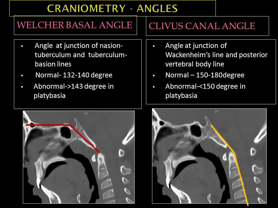 WELCHER BASAL ANGLE CLIVUS CANAL ANGLE  Angle at junction of nasion- tuberculum and tuberculum- basion lines  Normal- 132-140 degree  Abnormal->143 degree in platybasia  Angle at junction of Wackenheim's line and posterior vertebral body line  Normal – 150-180degree  Abnormal-<150 degree in platybasia