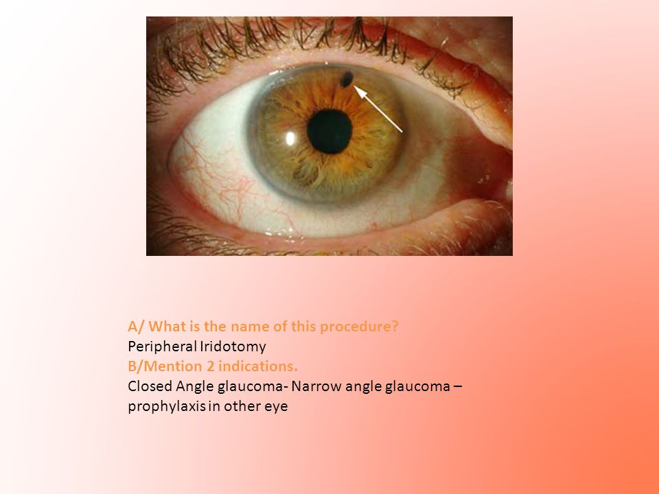 A/ What is the name of this procedure? Peripheral Iridotomy B/Mention 2 indications. Closed Angle glaucoma- Narrow angle glaucoma – prophylaxis in oth