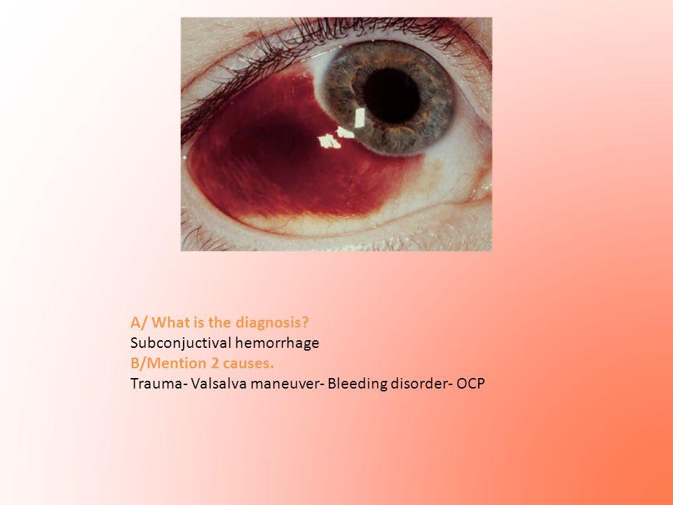 A/ What is the diagnosis? Subconjuctival hemorrhage B/Mention 2 causes. Trauma- Valsalva maneuver- Bleeding disorder- OCP