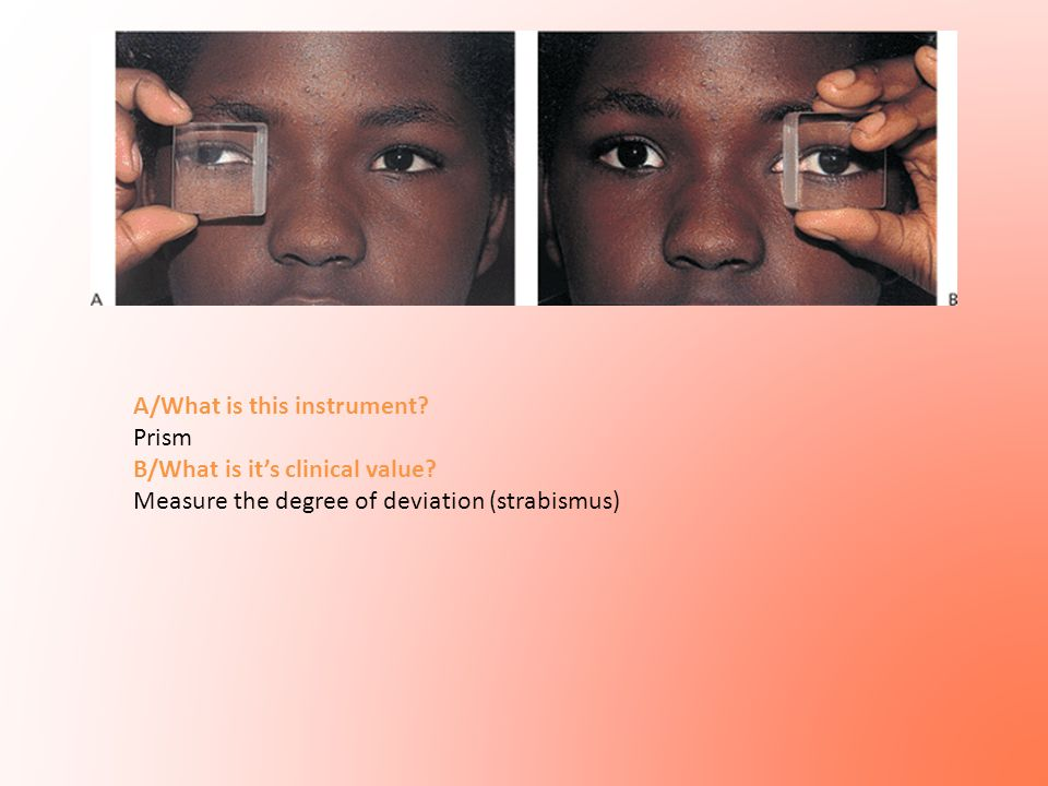 A/What is this instrument? Prism B/What is it's clinical value? Measure the degree of deviation (strabismus)