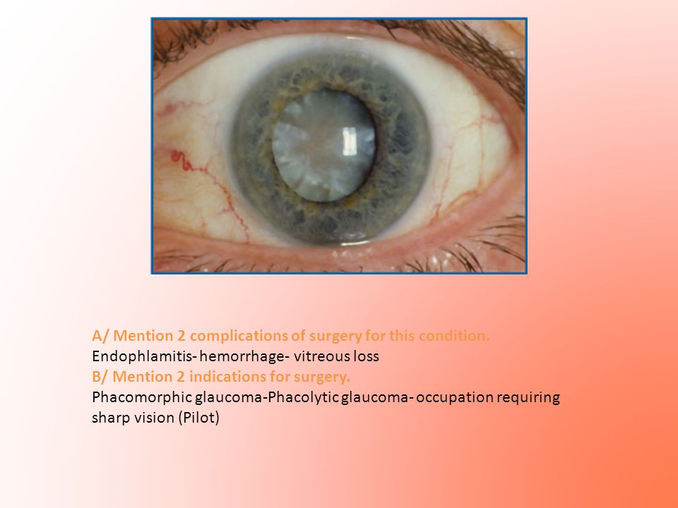 A/ Mention 2 complications of surgery for this condition. Endophlamitis- hemorrhage- vitreous loss B/ Mention 2 indications for surgery. Phacomorphic
