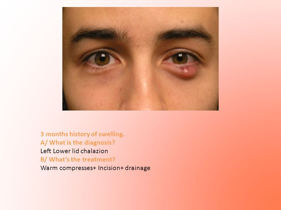 3 months history of swelling. A/ What is the diagnosis? Left Lower lid chalazion B/ What's the treatment? Warm compresses+ Incision+ drainage