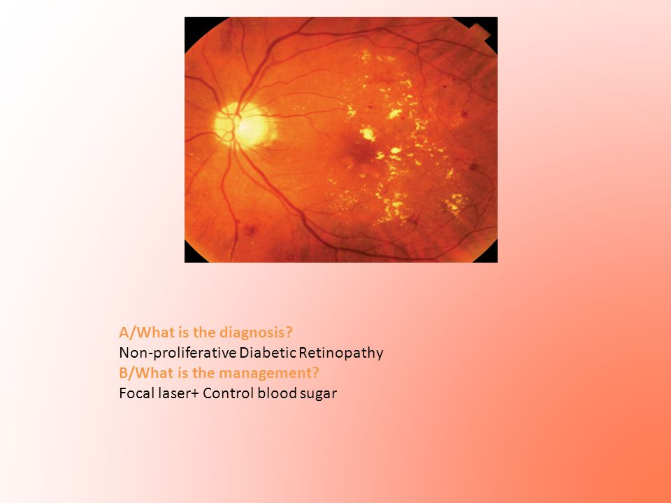 A/What is the diagnosis? Non-proliferative Diabetic Retinopathy B/What is the management? Focal laser+ Control blood sugar