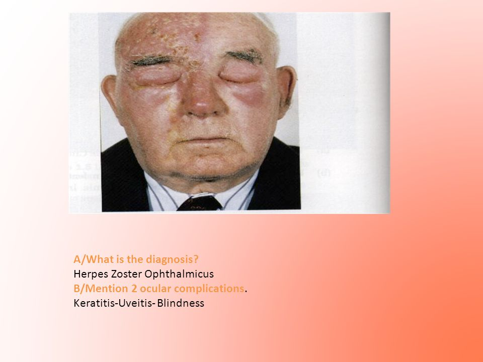 A/What is the diagnosis? Herpes Zoster Ophthalmicus B/Mention 2 ocular complications. Keratitis-Uveitis- Blindness