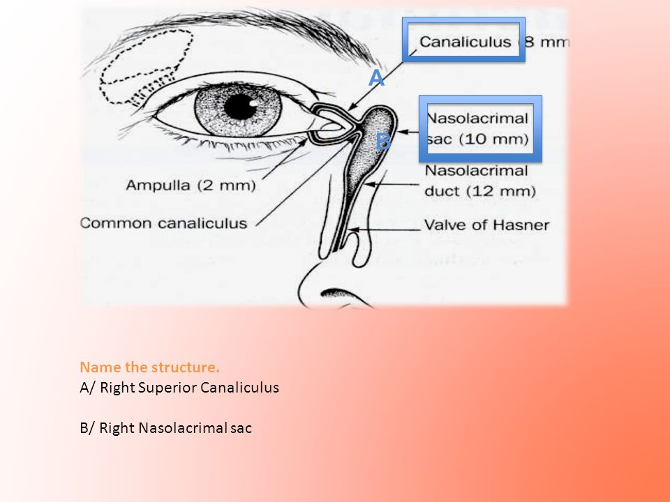 A B Name the structure. A/ Right Superior Canaliculus B/ Right Nasolacrimal sac