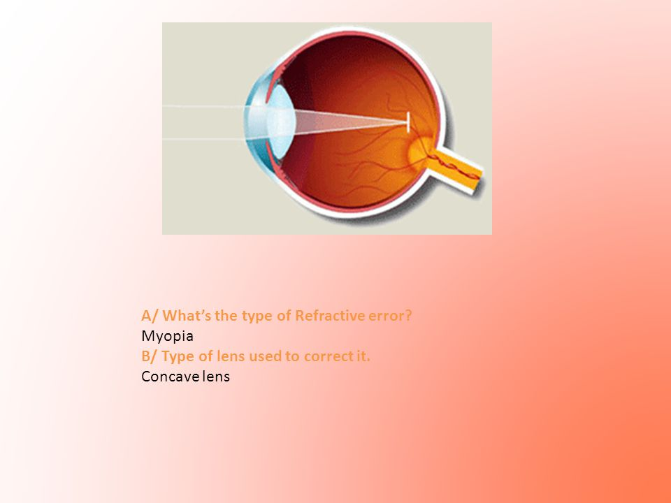 A/ What's the type of Refractive error? Myopia B/ Type of lens used to correct it. Concave lens