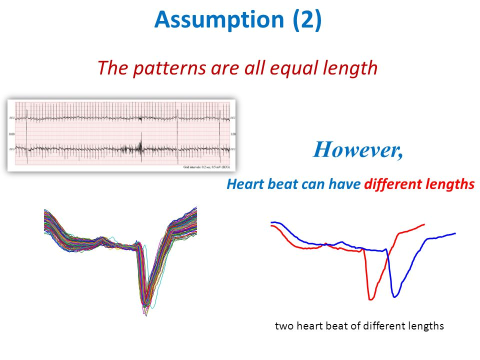 Assumption (2) The patterns are all equal length However, Heart beat can have different lengths two heart beat of different lengths