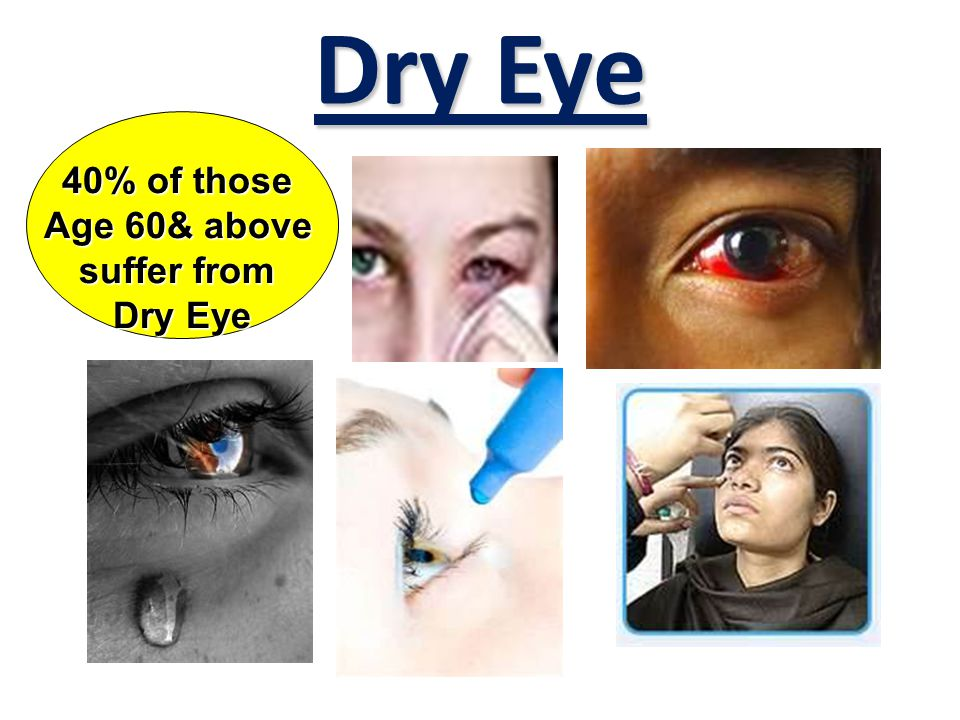 Dry Eye 40% of those Age 60& above suffer from Dry Eye