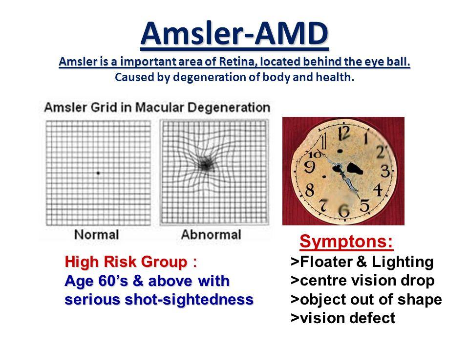 Amsler-AMD Amsler is a important area of Retina, located behind the eye ball. Amsler-AMD Amsler is a important area of Retina, located behind the eye
