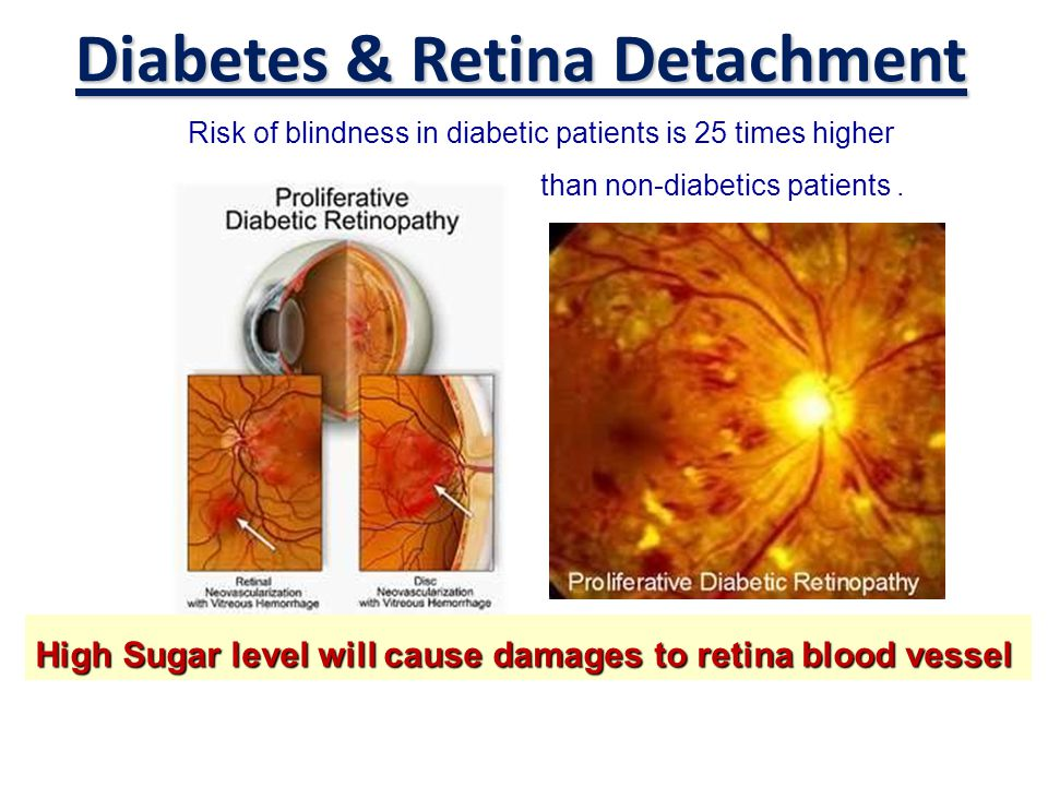 Diabetes & Retina Detachment Risk of blindness in diabetic patients is 25 times higher than non-diabetics patients. High Sugar level will cause damage