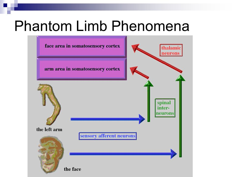 Phantom Limb Phenomena