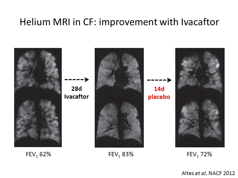 Helium MRI in CF: improvement with Ivacaftor FEV 1 62% 28d Ivacaftor FEV 1 83% 14d placebo FEV 1 72% Altes et al, NACF 2012