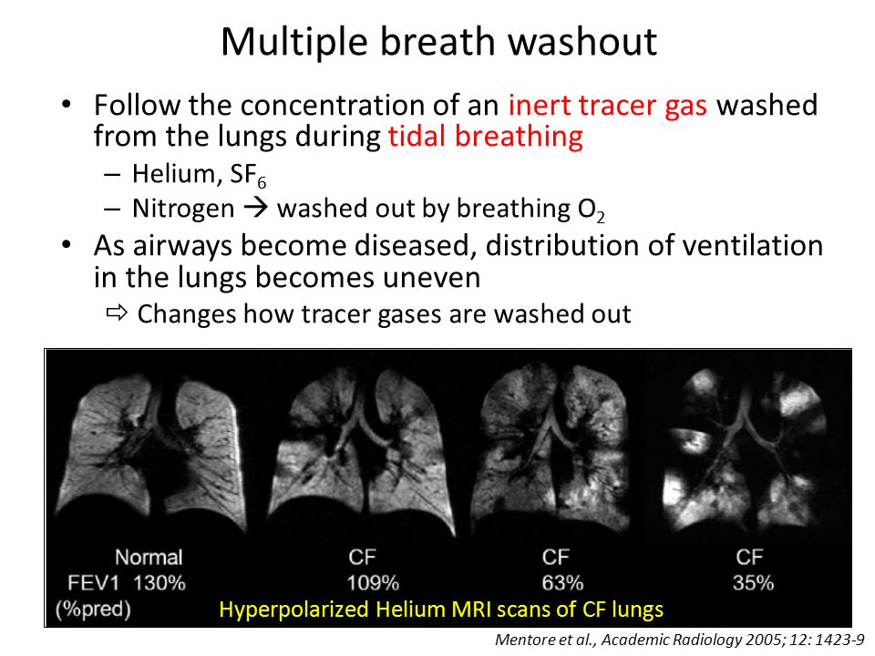 Multiple breath washout Follow the concentration of an inert tracer gas washed from the lungs during tidal breathing – Helium, SF 6 – Nitrogen  washed out by breathing O 2 As airways become diseased, distribution of ventilation in the lungs becomes uneven  Changes how tracer gases are washed out Hyperpolarized Helium MRI scans of CF lungs Mentore et al., Academic Radiology 2005; 12: 1423-9
