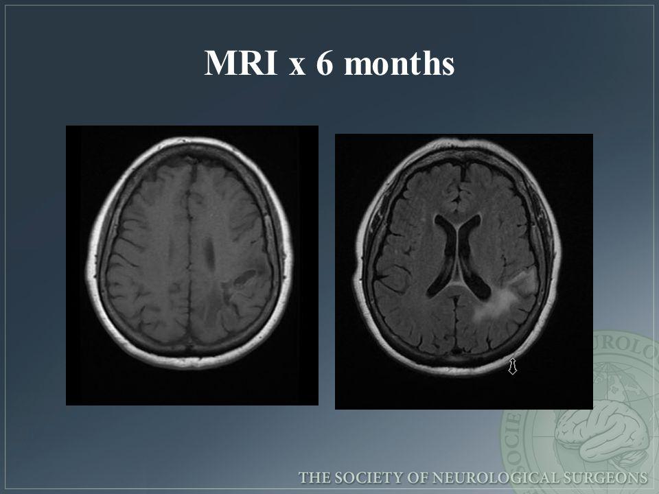 MRI x 6 months