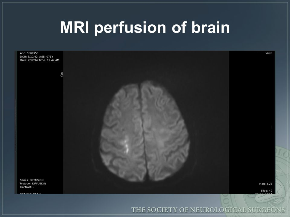 MRI perfusion of brain