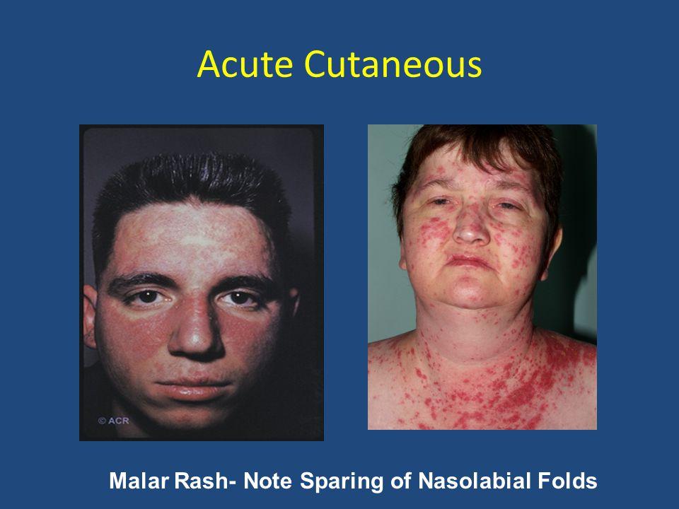 Malar Rash- Note Sparing of Nasolabial Folds Acute Cutaneous