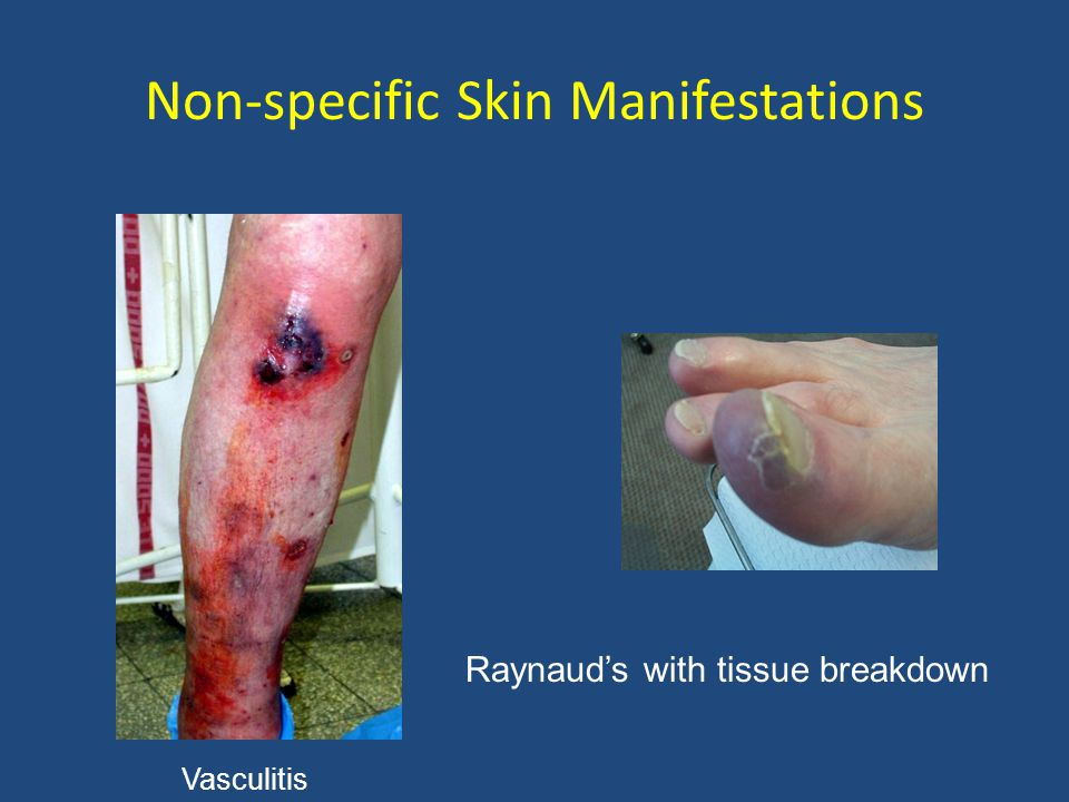 Non-specific Skin Manifestations Raynaud's with tissue breakdown Vasculitis