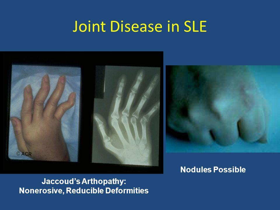 Jaccoud's Arthopathy: Nonerosive, Reducible Deformities Nodules Possible Joint Disease in SLE