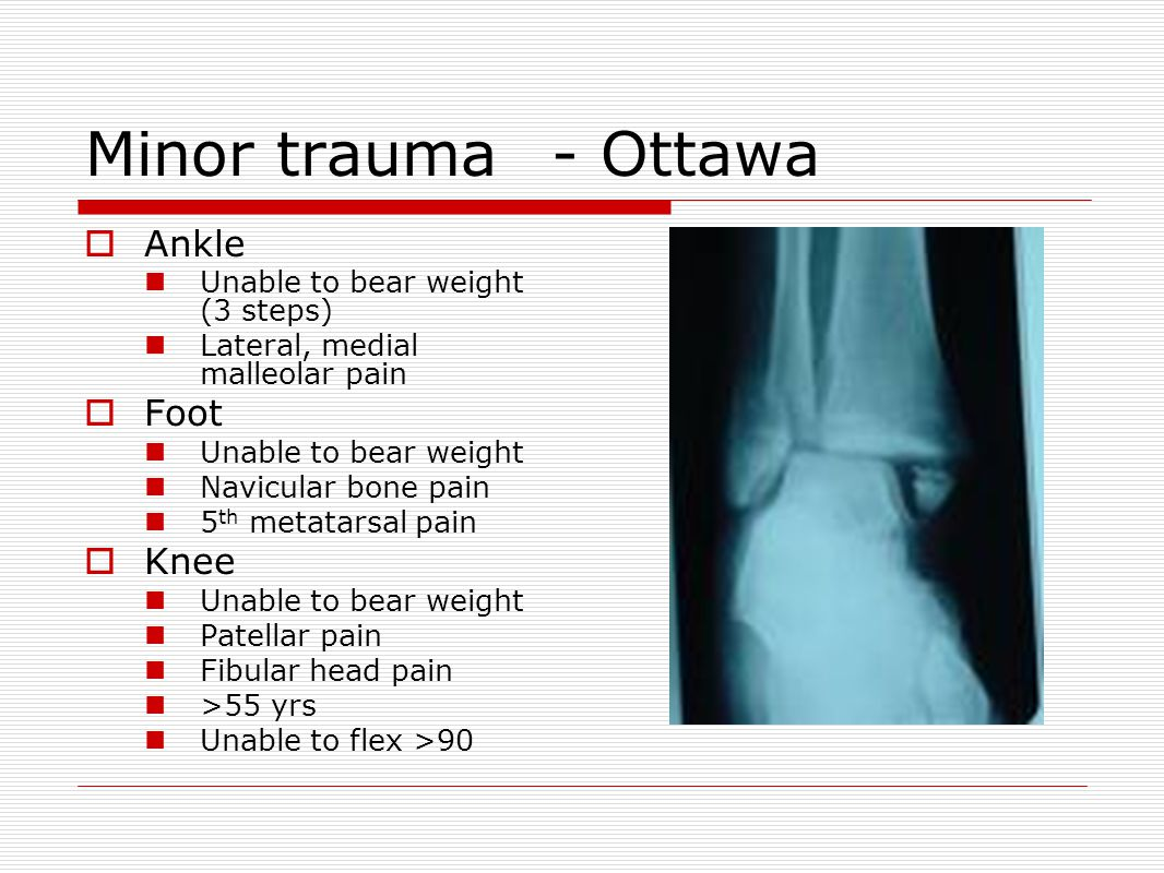 Minor trauma- Ottawa  Ankle Unable to bear weight (3 steps) Lateral, medial malleolar pain  Foot Unable to bear weight Navicular bone pain 5 th metatarsal pain  Knee Unable to bear weight Patellar pain Fibular head pain >55 yrs Unable to flex >90