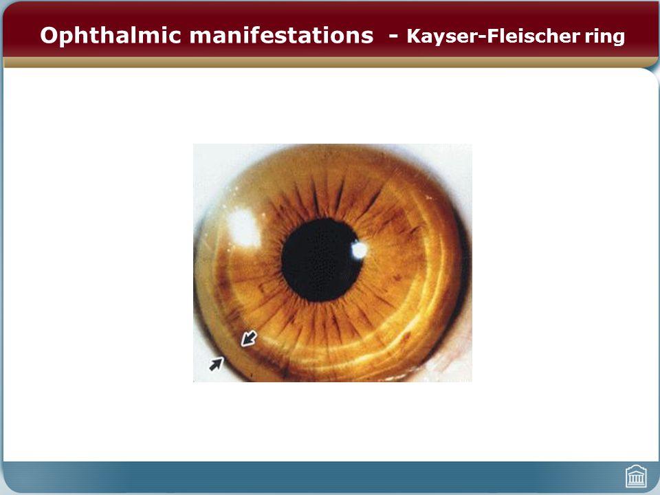 Ophthalmic manifestations - Kayser-Fleischer ring