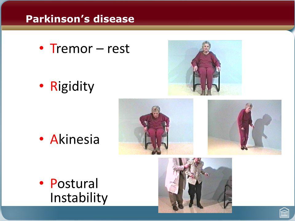 Parkinson's disease Tremor – rest Rigidity Akinesia Postural Instability