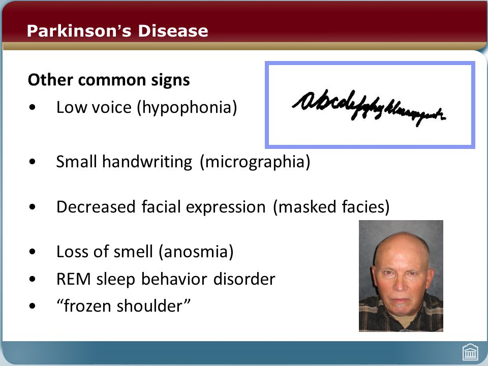 Other common signs Low voice (hypophonia) Small handwriting (micrographia) Decreased facial expression (masked facies) Loss of smell (anosmia) REM sleep behavior disorder frozen shoulder Parkinson ' s Disease