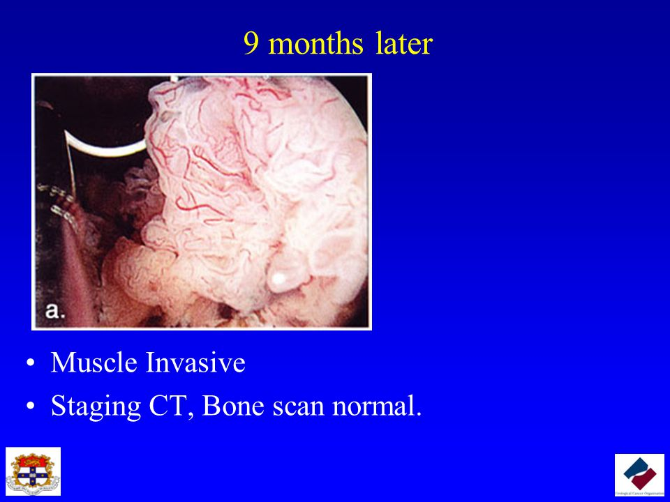 9 months later Muscle Invasive Staging CT, Bone scan normal.