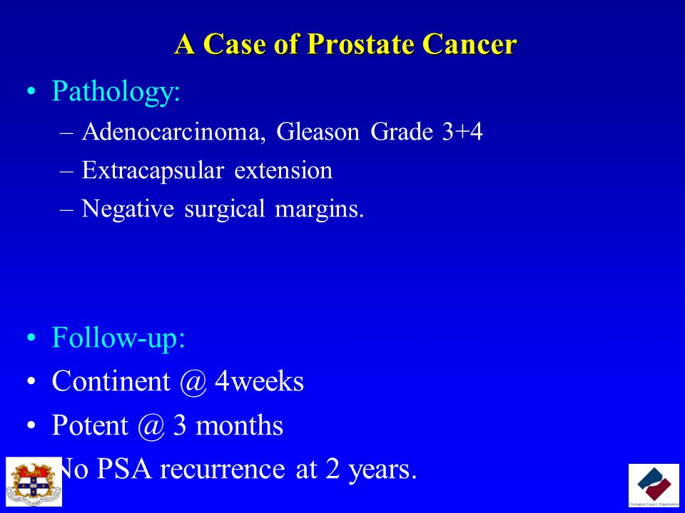A Case of Prostate Cancer Pathology: –Adenocarcinoma, Gleason Grade 3+4 –Extracapsular extension –Negative surgical margins. Follow-up: Continent @ 4w