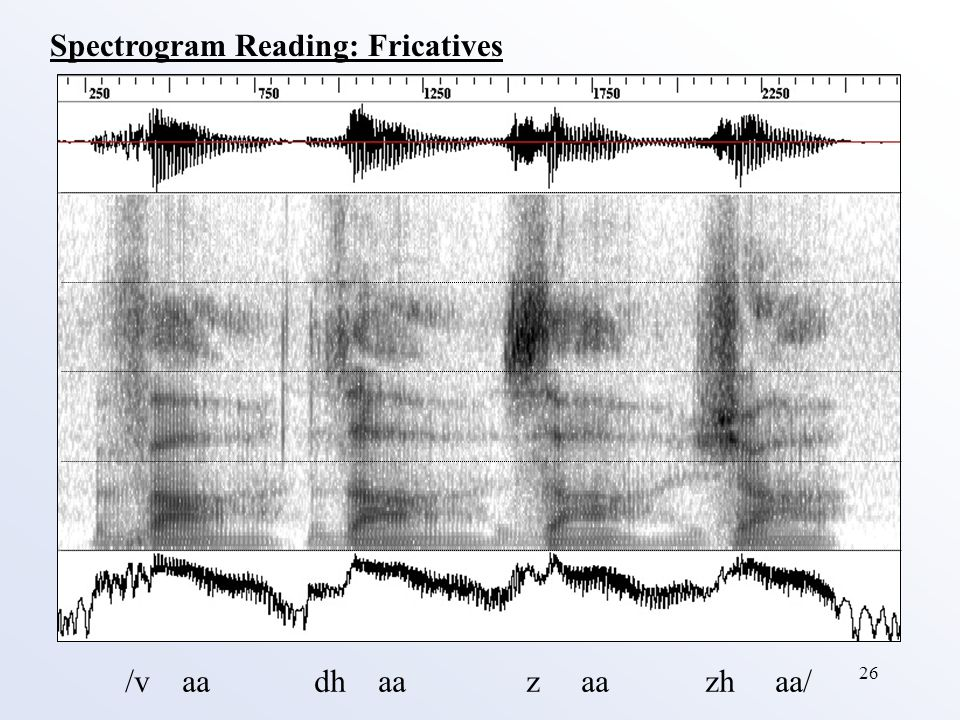 26 Spectrogram Reading: Fricatives /v aa dh aa z aa zh aa/