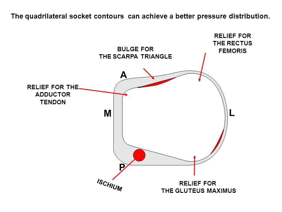 RELIEF FOR THE GLUTEUS MAXIMUS ISCHIUM RELIEF FOR THE ADDUCTOR TENDON BULGE FOR THE SCARPA TRIANGLE RELIEF FOR THE RECTUS FEMORIS The quadrilateral socket contours can achieve a better pressure distribution.