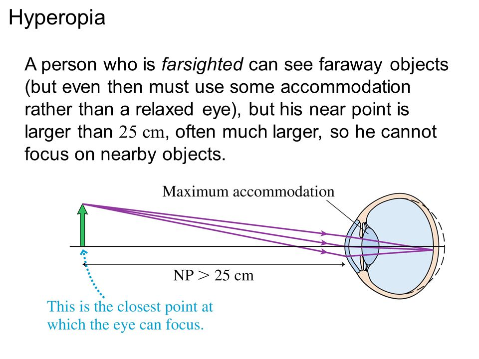 Hyperopia A person who is farsighted can see faraway objects (but even then must use some accommodation rather than a relaxed eye), but his near point