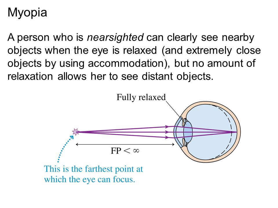 Myopia A person who is nearsighted can clearly see nearby objects when the eye is relaxed (and extremely close objects by using accommodation), but no