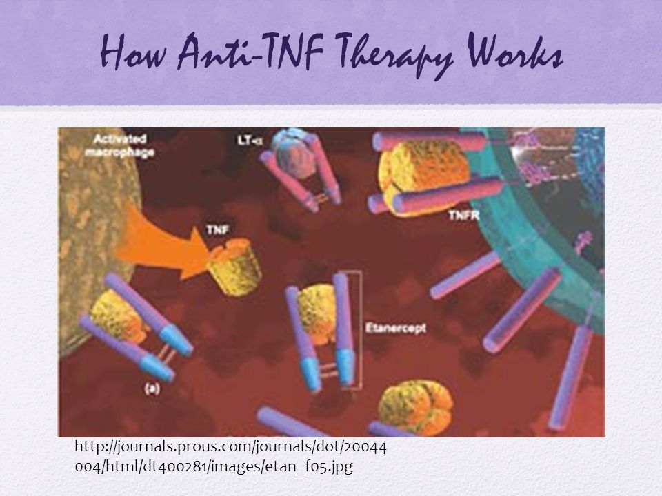 How Anti-TNF Therapy Works http://journals.prous.com/journals/dot/20044 004/html/dt400281/images/etan_f05.jpg