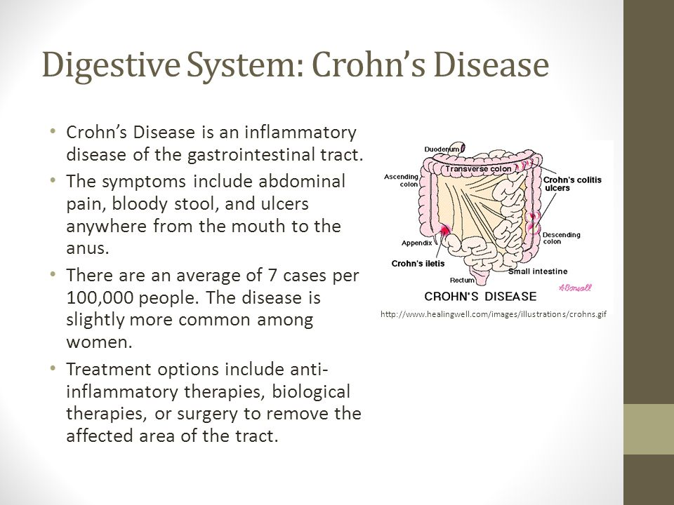 Digestive System: Crohn's Disease Crohn's Disease is an inflammatory disease of the gastrointestinal tract.