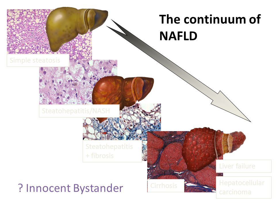 Liver Biopsy Allows estimation of disease severity and allows prognostication Sampling variability Specific histological scoring system in place Fibrosis more likely —age > 50, +DM, ALT > 2 X UNL Consider biopsy in patients with peripheral stigmata of liver disease, thrombocytopenia, age > 45, abnormal iron studies, DM, significant obesity and splenomegaly Histologic progression most likely in patients with baseline inflammation.