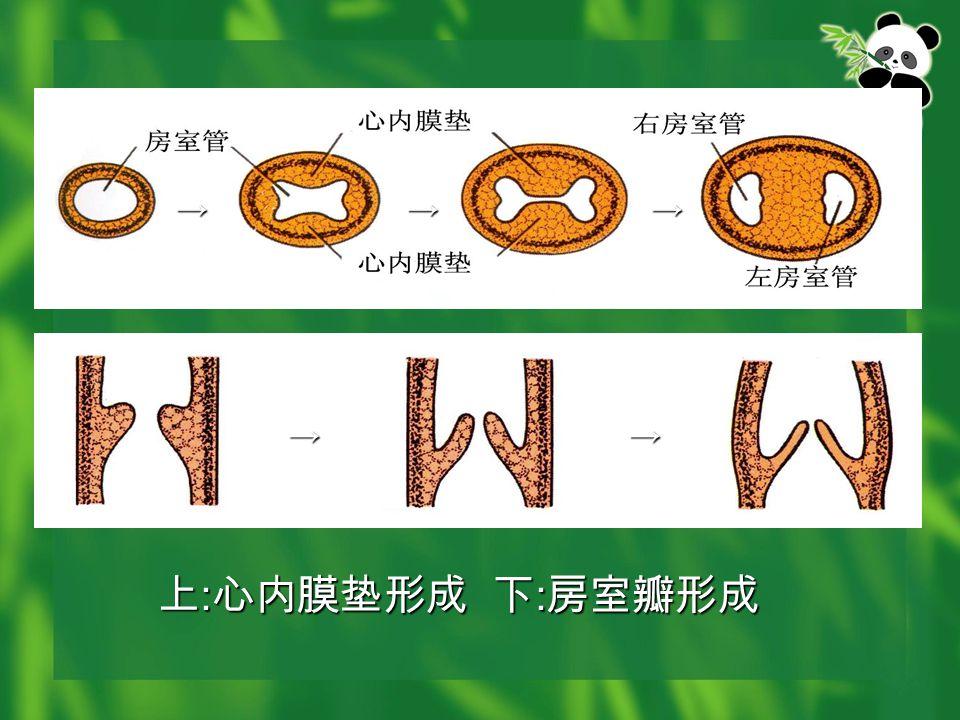 上 : 心内膜垫形成 下 : 房室瓣形成 →→→ →→