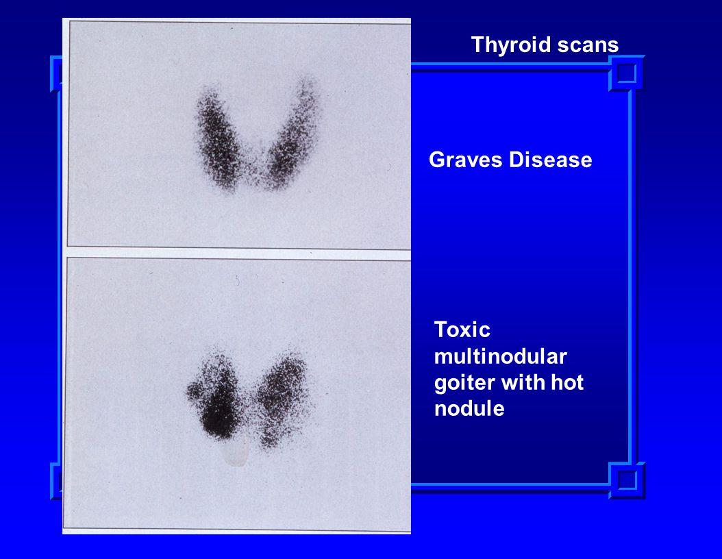 Thyroid scans Graves Disease Toxic multinodular goiter with hot nodule