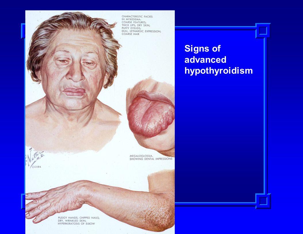 Signs of advanced hypothyroidism